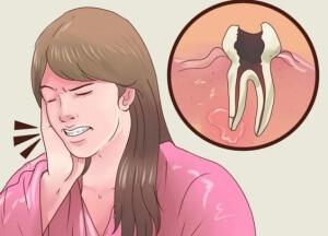 Быстрое и эффективное снятие зубной боли