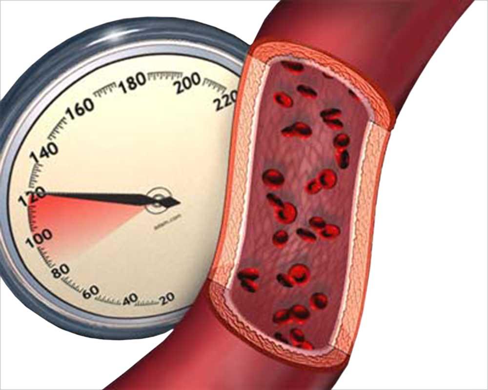Простой метод поможет избавиться от скачков артериального давления
