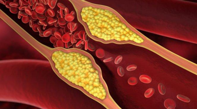 Почему разжижающие кровь препараты способствуют инфаркту миокарда?