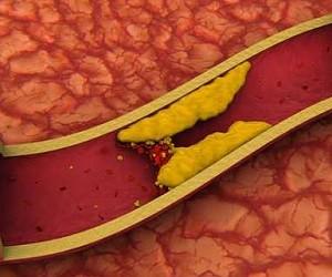 ТОП-6 натуральных средств для очищения артерий