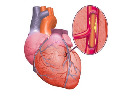 Какую угрозу представляет ишемическая болезнь сердца?