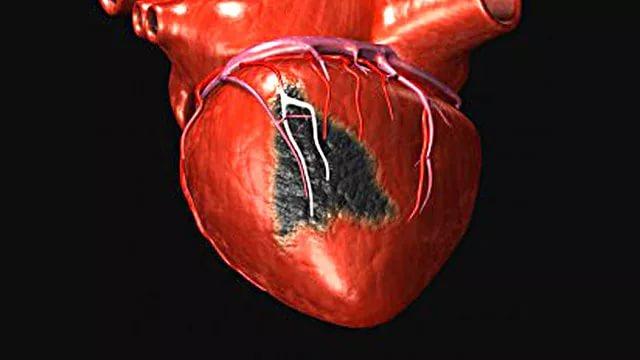 Биодобавки с кальцием повышают риск возникновения инфаркта у женщин