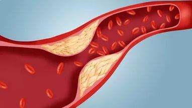 3 вкусных рецепта для лечения и профилактики атеросклероза!