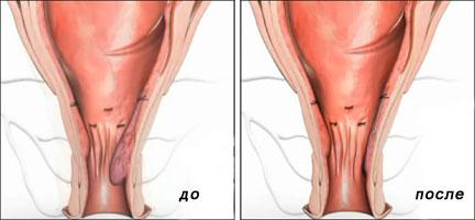 Причины выпадения геморроидальных узлов. Основные методы их лечения