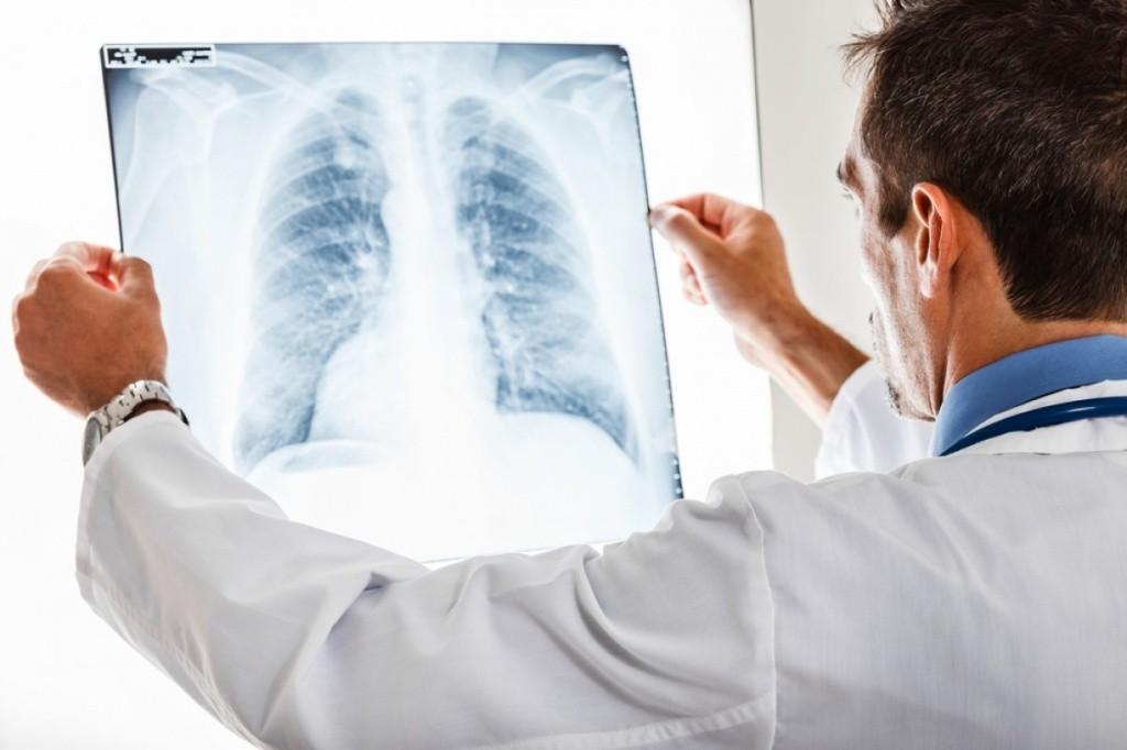 Пневмония, лечение и профилактика. Понятие и симптомы пневмонии