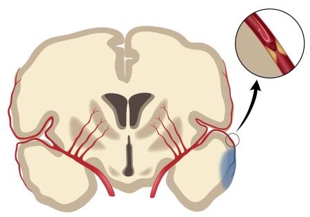 Мозговая кома (инсульт)