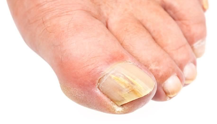 Грибок ногтей — основные виды и профилактика микозов