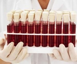 Риск инфаркта определяется по группе крови