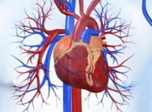 Найдены мутации, повышающие риск ишемической болезни сердца