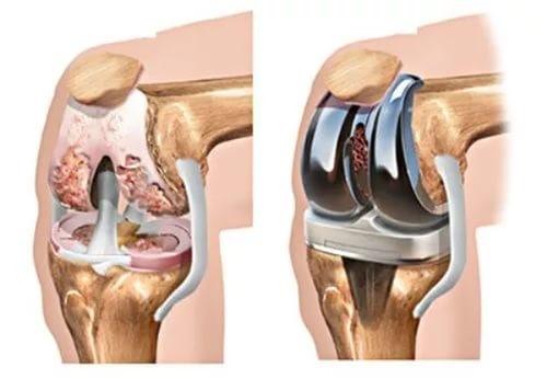 Операция по эндопротезированию коленного сустава, как устанавливают протез?