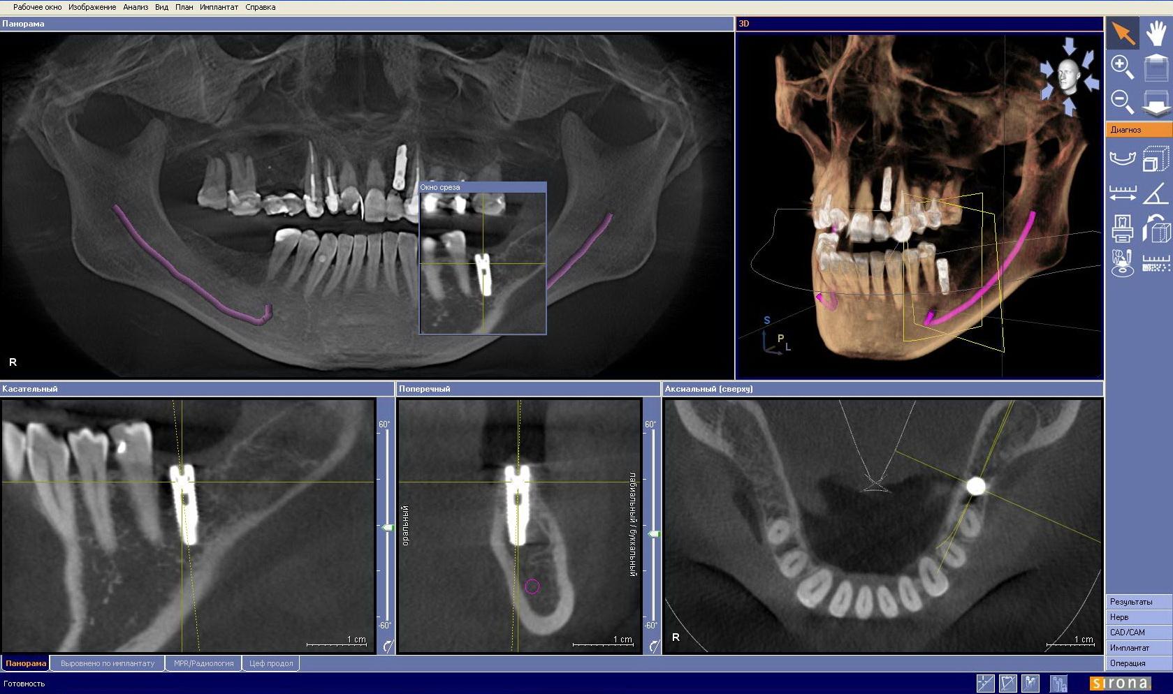 Где сделать компьютерную томографию зубов
