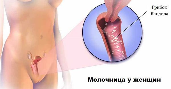 Молочница у женщин — причины возникновения и излечение от Candida albicans