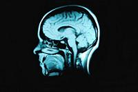 Заболевание головного мозга. Лечение головной боли