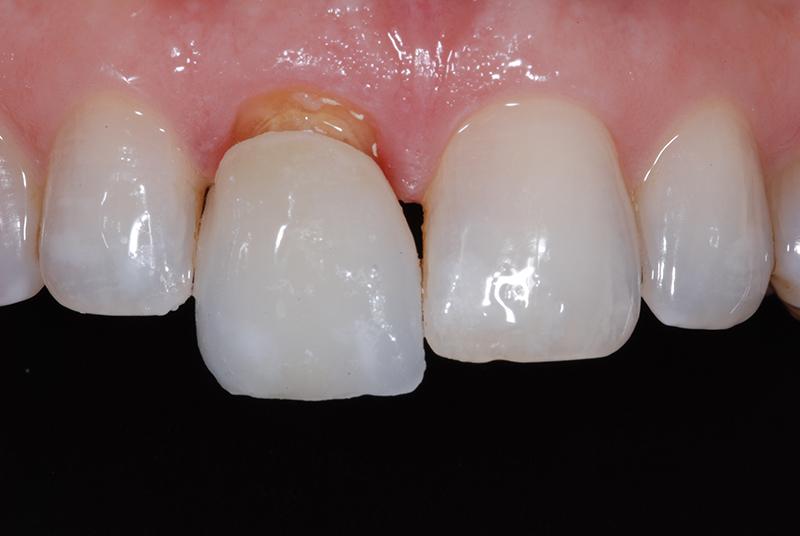 Когда нужны зубные коронки