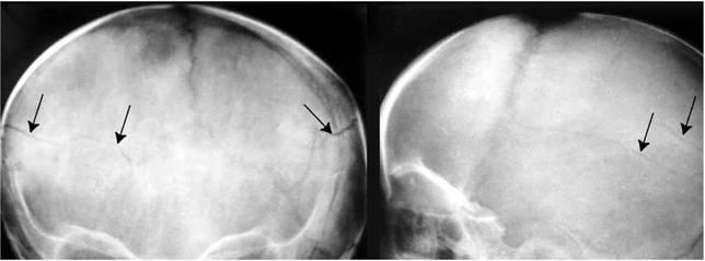 Перелом затылочной кости – разновидности и симптомы