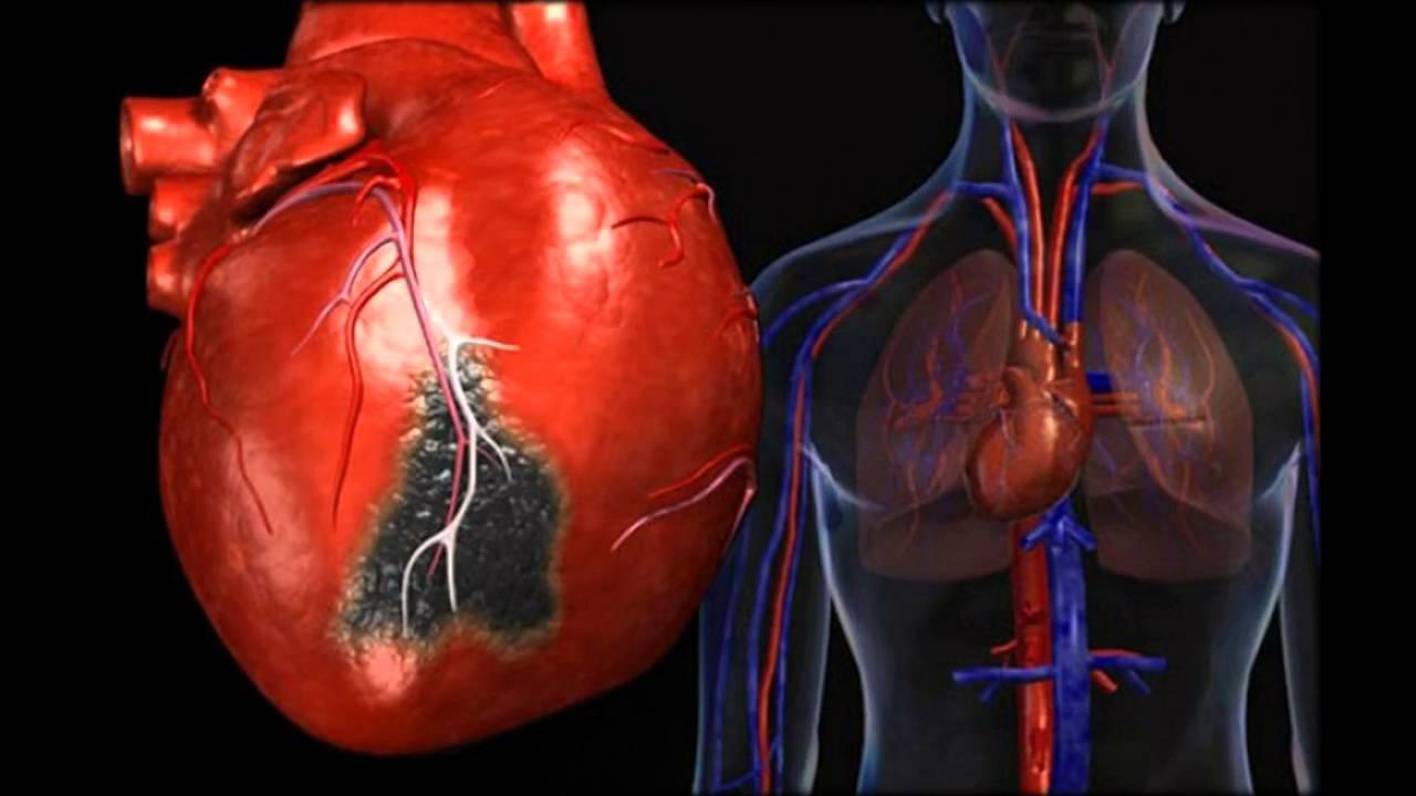 Инфекционный миокардит – как лечить болезнь