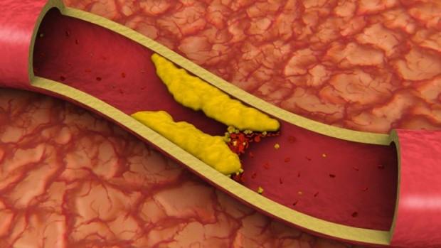 Некурящие люди с нормальным весом все равно имеют высокий риск пострадать от инфаркта