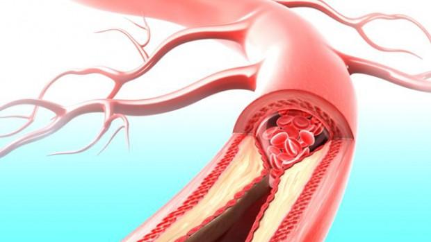 Физические нагрузки и правильное питание способствуют укреплению сосудов