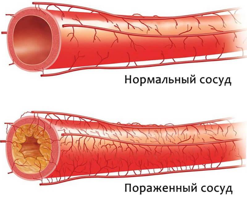ТОП-5 признаков забитых артерий