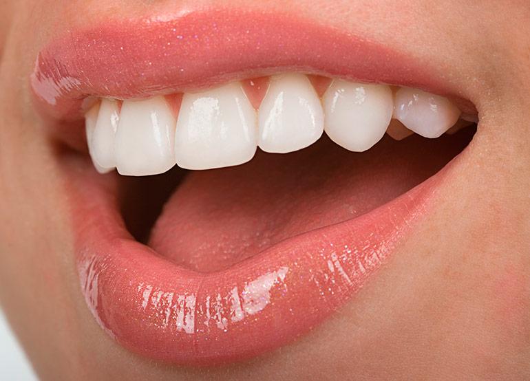 Протезирование передних зубов при помощи виниров