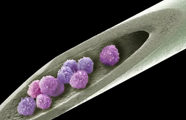 Применение стволовых клеток несет риск тромбоза