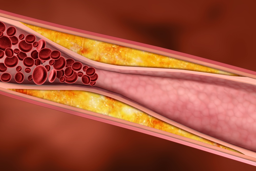 Самая высокая концентрация холестерина отмечается в холодное время года