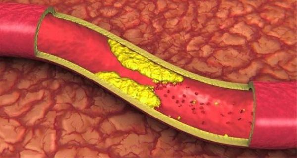 Кровеносные сосуды не защищены от инфекций