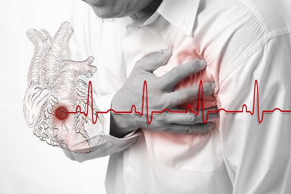 5 симптомов надвигающегося инфаркта