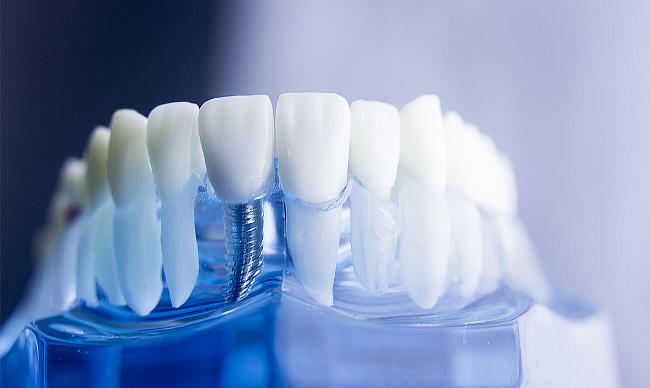 Зубные импланты в Харькове