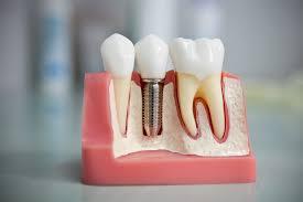 Имплантация зубов — лучшая альтернатива