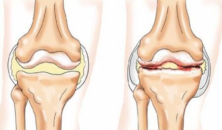 Медицина. Как врачи диагностируют остеоартрит?