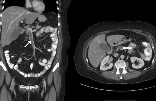 Тромбоз брыжеечных вен: симптомы, причины, диагностика, лечение