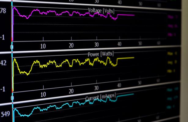 Казанские нейрофизиологи предложили искать ишемию на энцефалограммах
