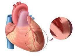 Искусственное кровообращение и кардиоплегия