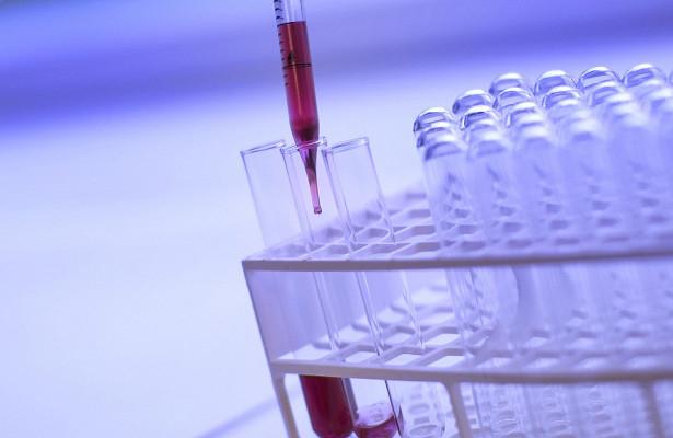 Что такое гипоальбуминемия и как ее лечить