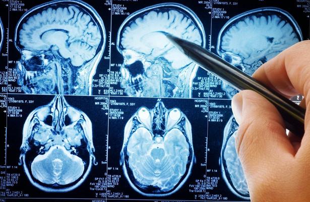 Мозг начинает стареть в 25 лет