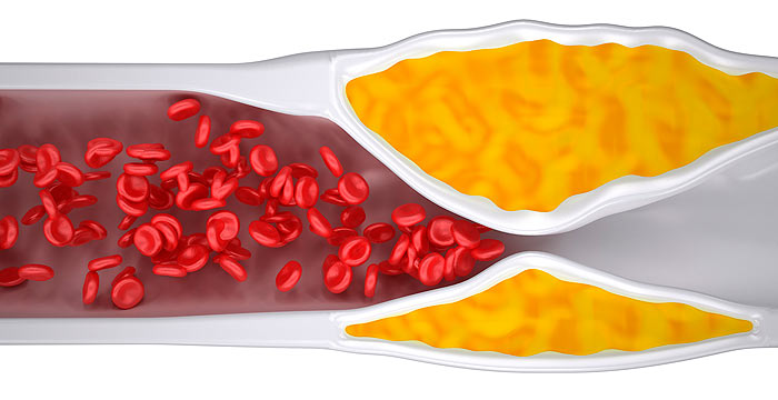 Разбираемся с холестерином