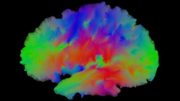 Специалисты создали миниатюрный мозг с собственными кровеносными сосудами
