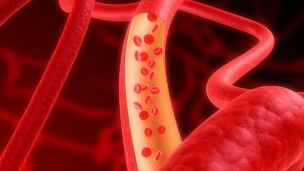 Инфаркт может оставлять в крови специфическую клеточную метку