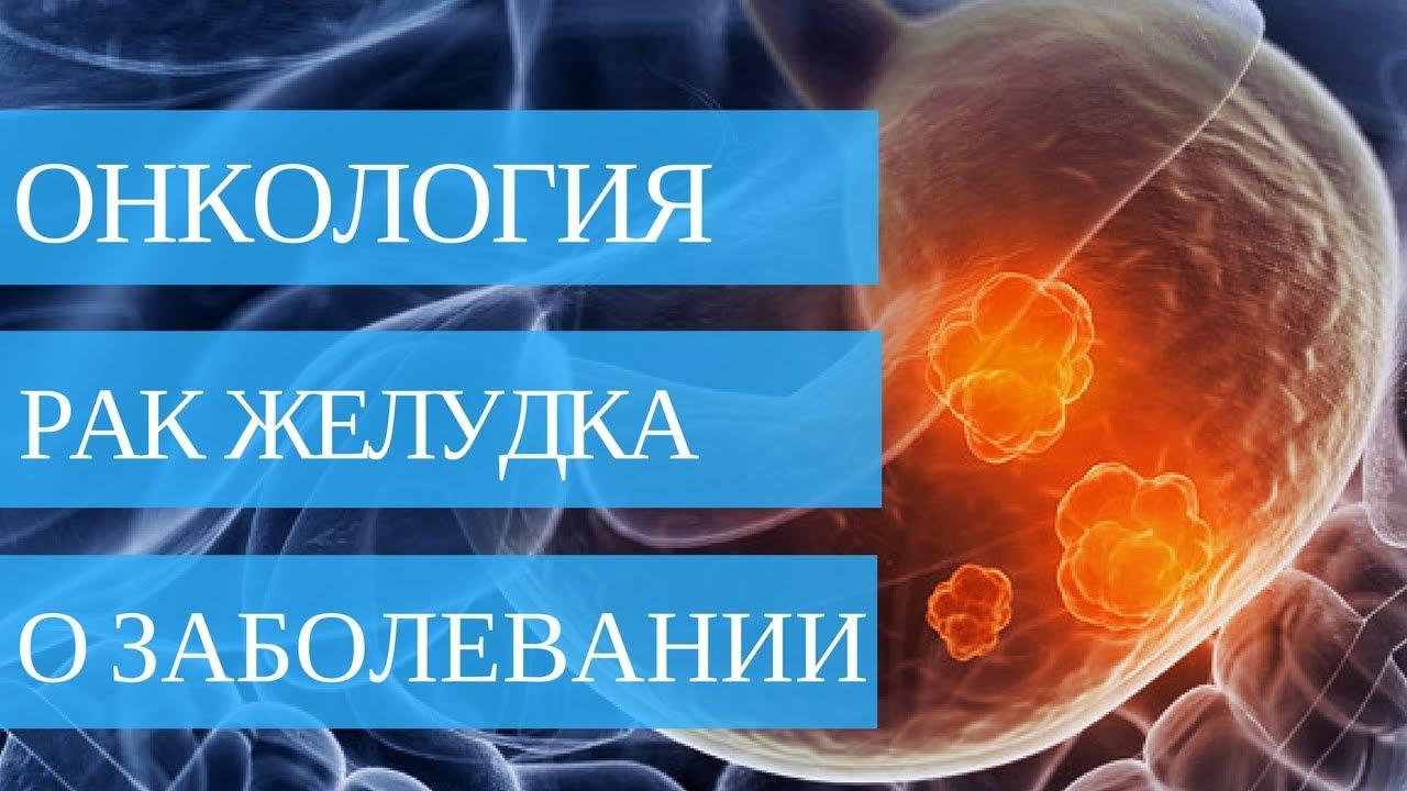 Причины, стадии и лечение рака желудка