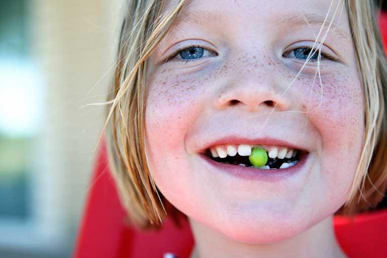 Лечим зубы ребенку без слез