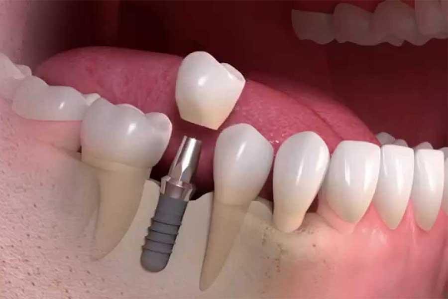 Протезирование зубов. Косметическая стоматология: зубные протезы, предназначенные для естественной улыбки