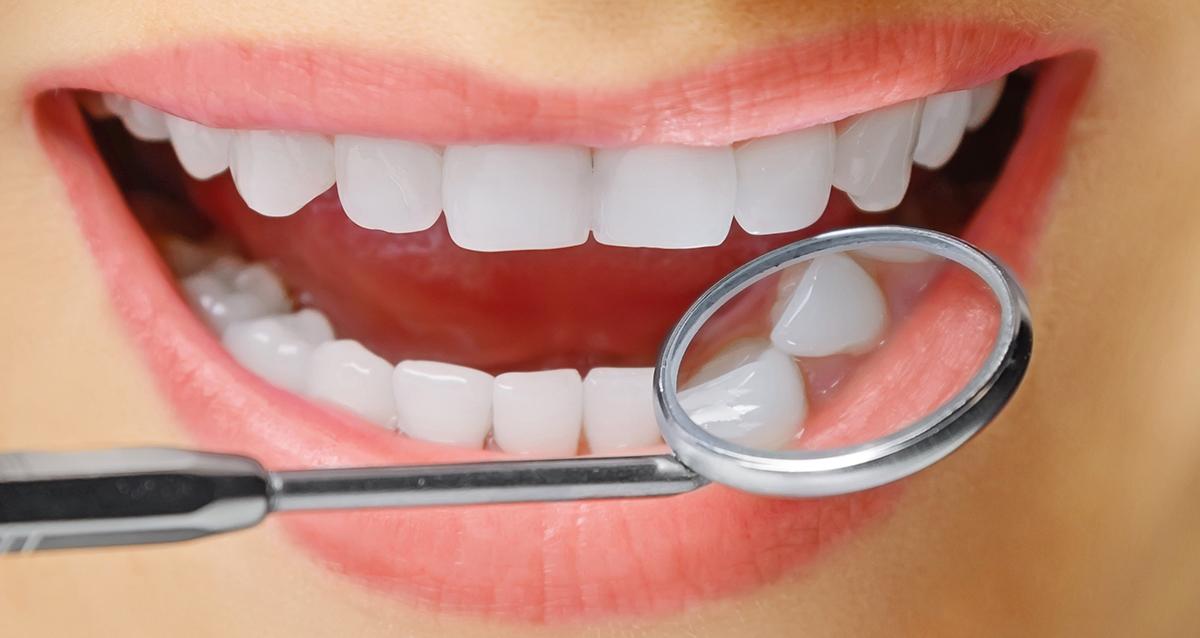 Протезирование зубов. Причины, по которым зубные имплантаты являются отличными восстановительными процедурами