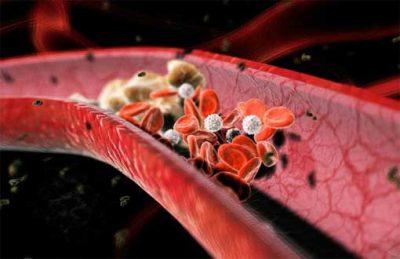 Медики подсказали, как защитить сосуды от образования тромбов