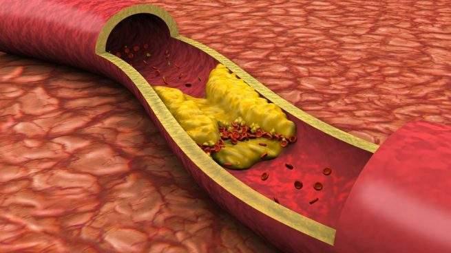 Признаки атеросклероза, которые нельзя игнорировать