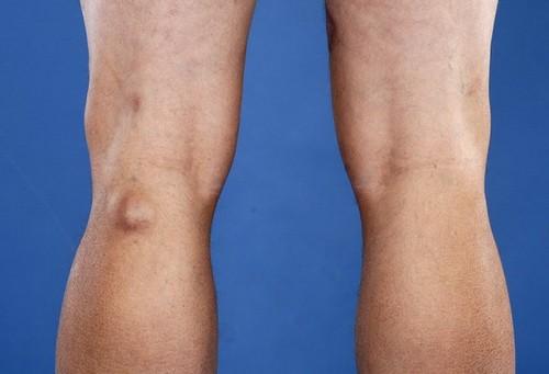 4 симптома тромбоза подколенной вены