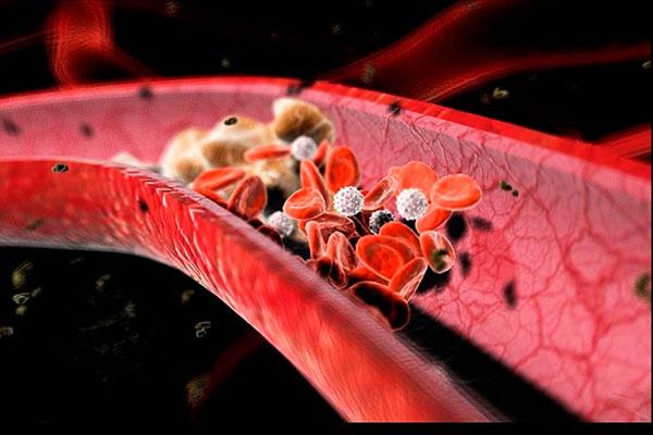 Причины свертывания крови, как избежать образования тромбов