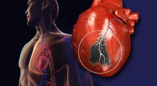 Медики назвали основные причины инфаркта