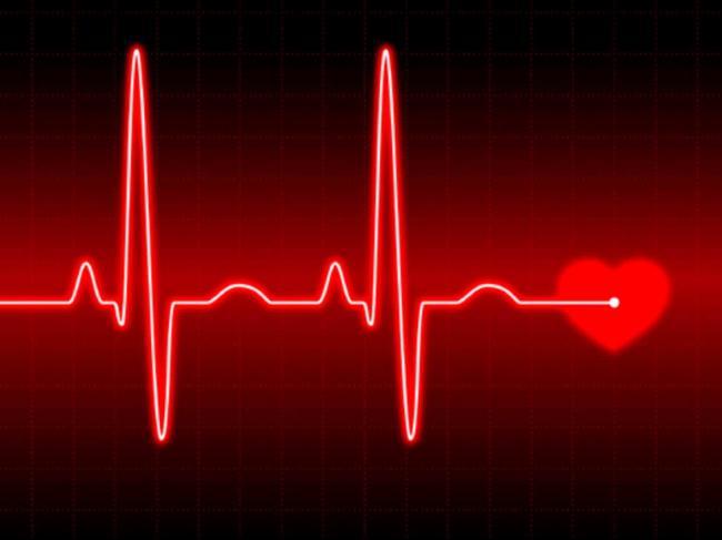 Нерегулярное сердцебиение может привести к развитию деменции