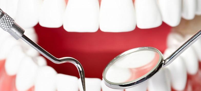 Лечение кисты в стоматологии: особенности процесса
